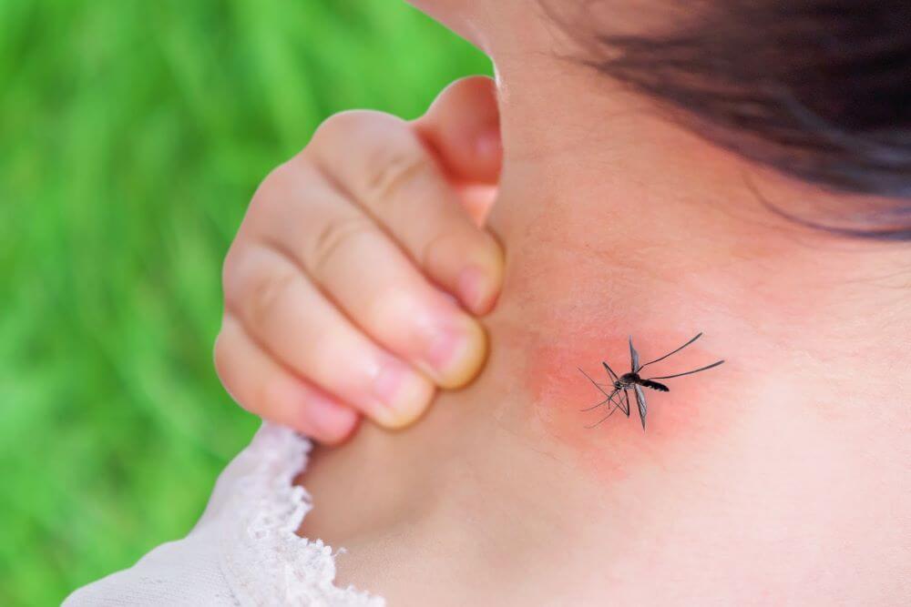 Trị vết muỗi đốt sưng đỏ như thế nào hiệu quả nhanh?